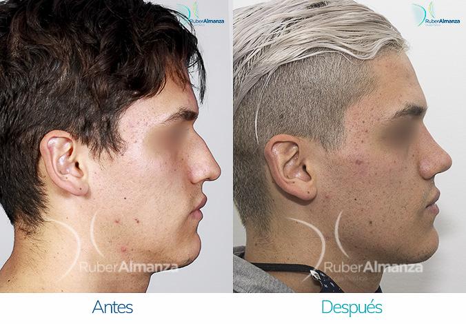 antes-y-despues-rinoplastia-bogota-colombia-dr-ruber-almanza-stvra-derecho