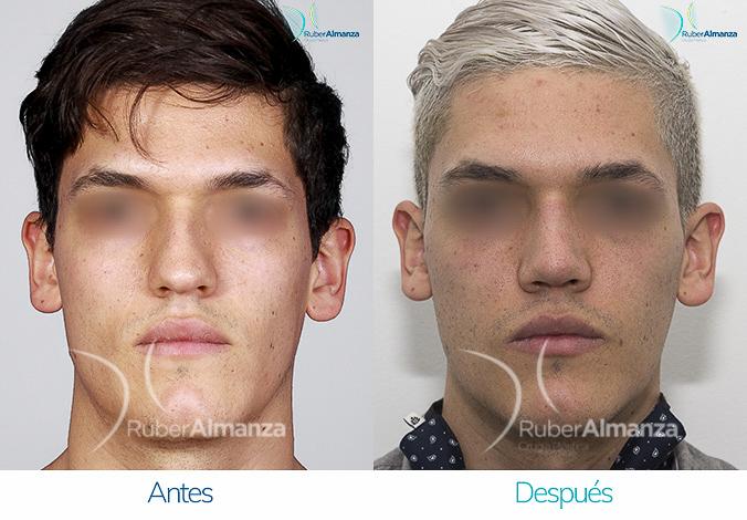antes-y-despues-rinoplastia-bogota-colombia-dr-ruber-almanza-stvra-frontal