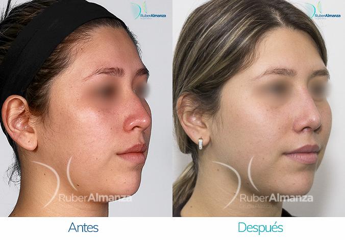antes-y-despues-rinoplastia-bogota-colombia-dr-ruber-almanza-svr-diagonal-derecho