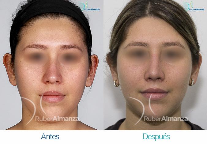 antes-y-despues-rinoplastia-bogota-colombia-dr-ruber-almanza-svr-frontal