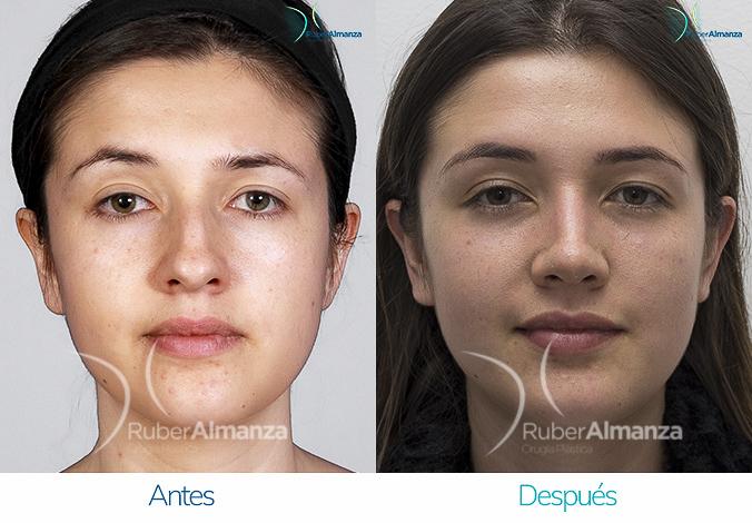antes-y-despues-rinoplastia-bogota-colombia-dr-ruber-almanza-vagar-frontal