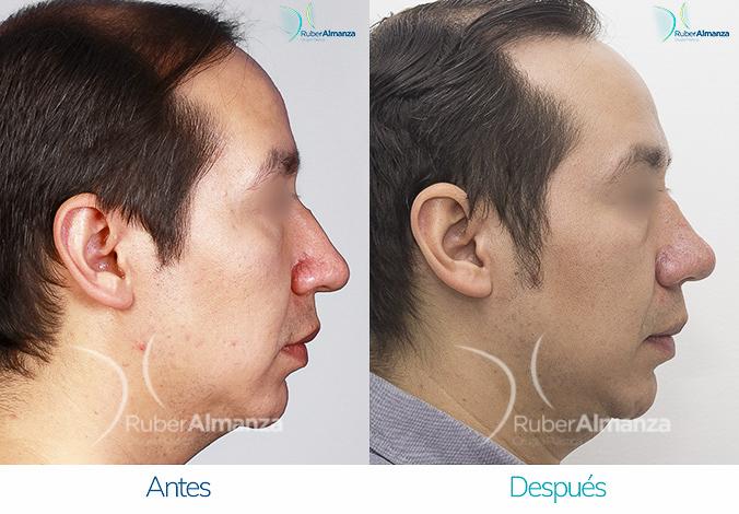 antes-y-despues-rinoplastia-bogota-colombia-dr-ruber-almanza-vap-derecho