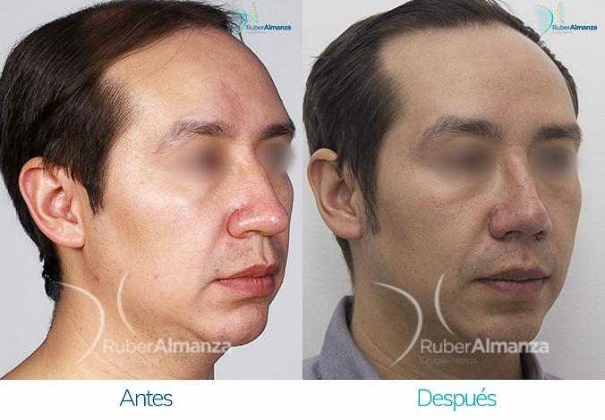 antes-y-despues-rinoplastia-bogota-colombia-dr-ruber-almanza-vap-diagonal-derecho