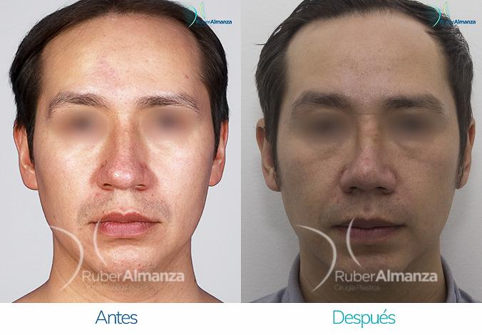 antes-y-despues-rinoplastia-bogota-colombia-dr-ruber-almanza-vap-frontal