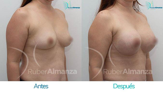 antes-y-despues-mamoplastia-bogota-colombia-dr-ruber-almanza-dms-diagonal-derecho