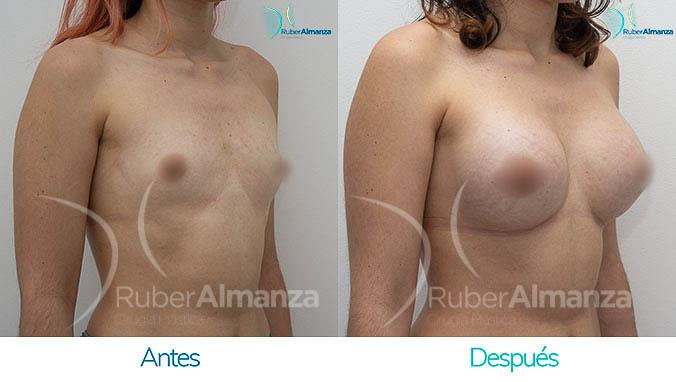 antes-y-despues-mamoplastia-bogota-colombia-dr-ruber-almanza-jh-diagonal-derecho
