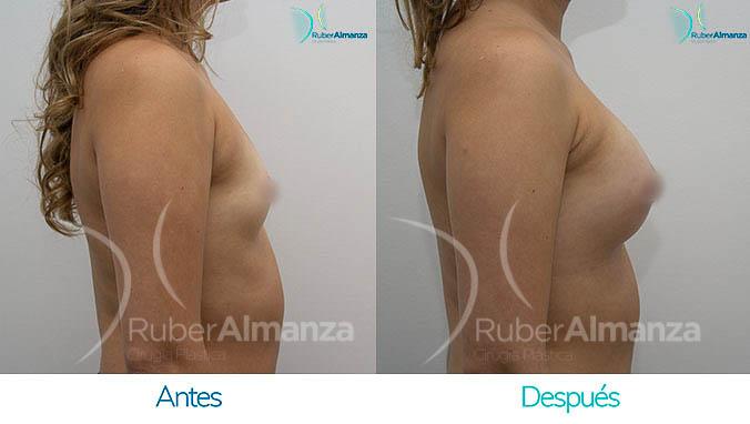 antes-y-despues-mamoplastia-bogota-colombia-dr-ruber-almanza-lfh-lateral-derecho-2