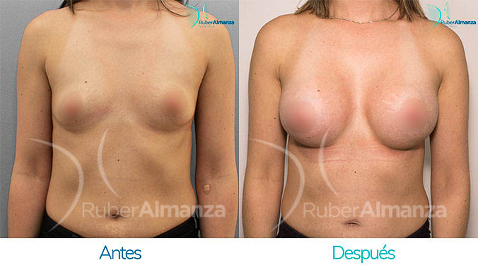 antes-y-despues-mamoplastia-bogota-colombia-dr-ruber-almanza-ng-frontal