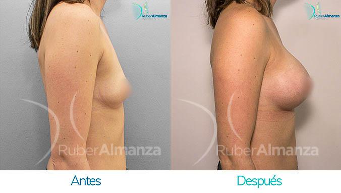 antes-y-despues-mamoplastia-bogota-colombia-dr-ruber-almanza-ng-lateral-derecho