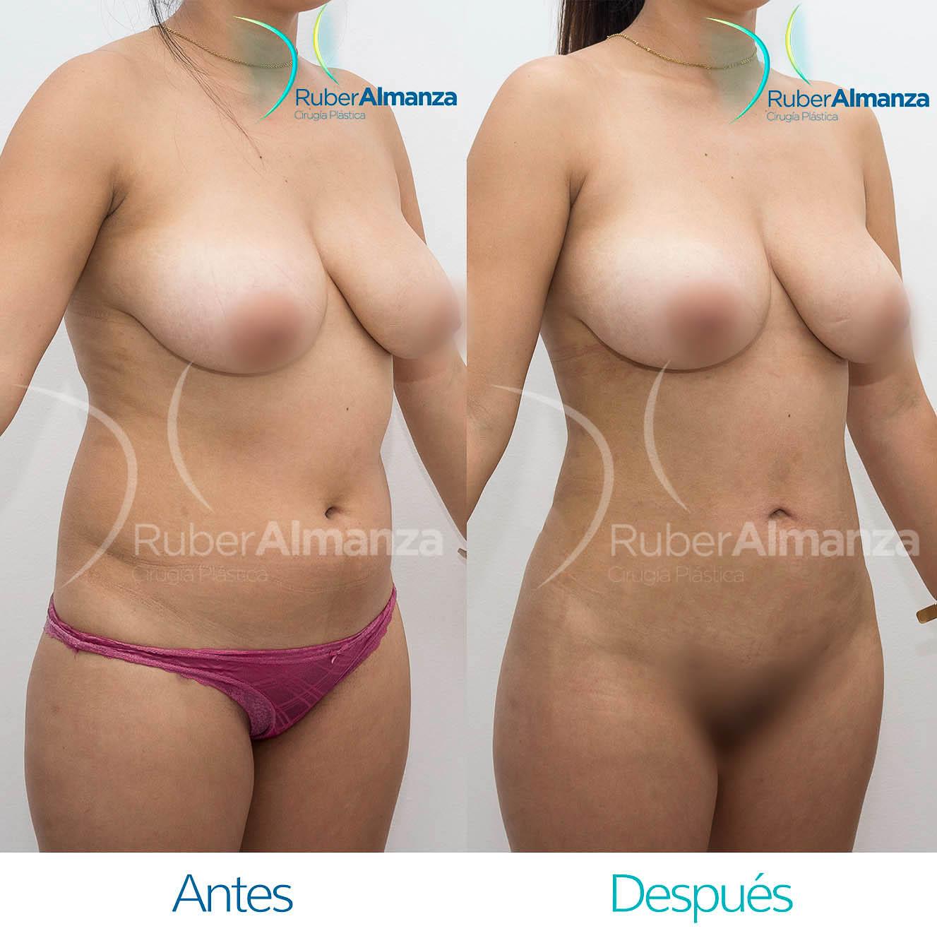 Liposuccion Bogota Colombia Dr Ruber Almanza Cirujano plástico 4