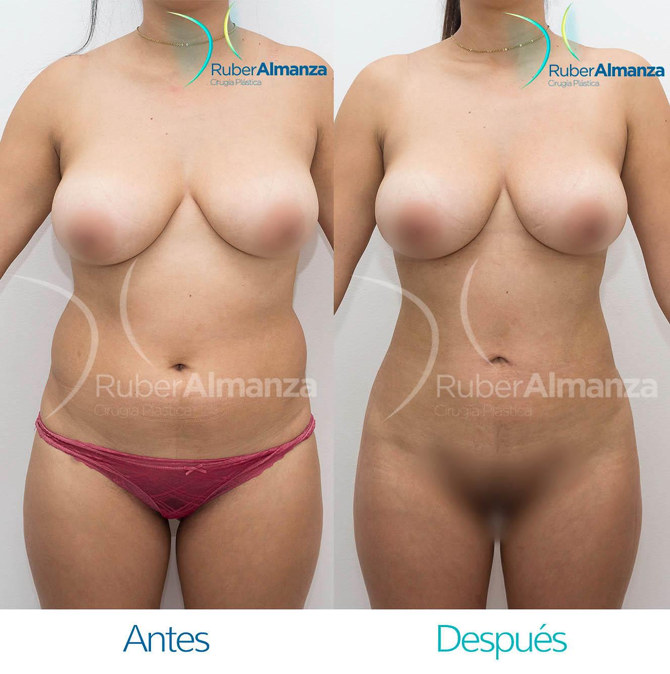 Liposuccion Bogota Colombia Dr Ruber Almanza Cirujano plástico