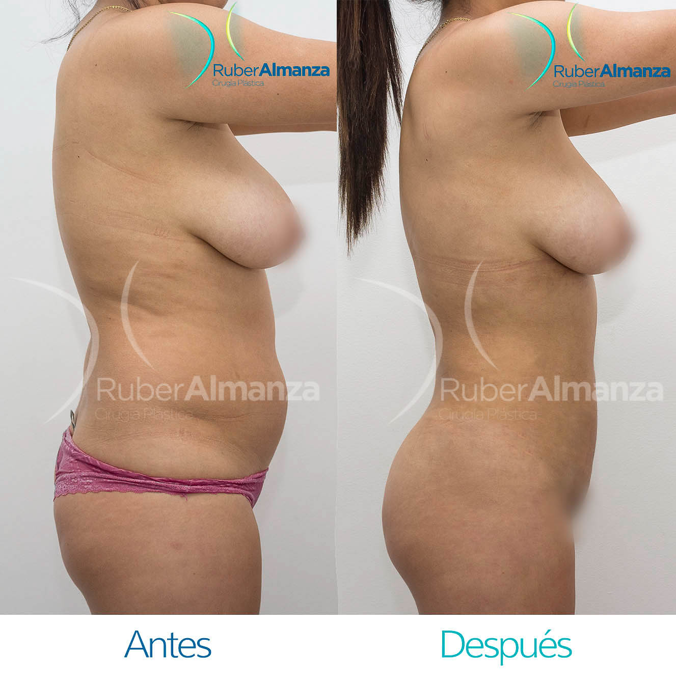 Liposuccion Bogota Colombia Dr Ruber Almanza Cirujano plástico 2